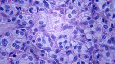 Présentation du Programme de Soins en oncologie de l'Hôpital Erasme