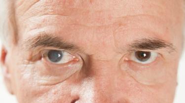 La cataracte de l'oeil, trouble de la vision qui survient lorsque le cristallin perd de sa transparence, se traite en ambulatoire à l'Hôpital Erasme (Bruxelles) .