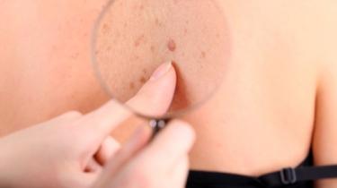 Prévention et dépistage cancers de la peau