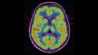 Image obtenue avec un PET scan