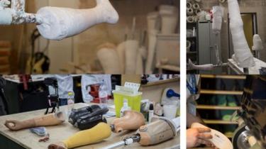 Département médical du CTR : réalisation de prothèses, etc.