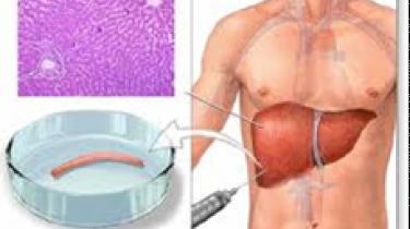 Schéma biopsie du foie percutanée