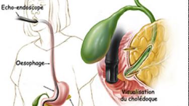 Echo-endoscopie du tube digestif
