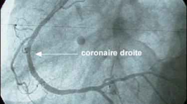 Photo examen coronaire