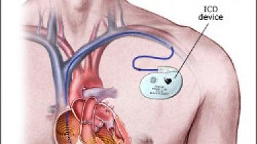Défibrillateur implanté