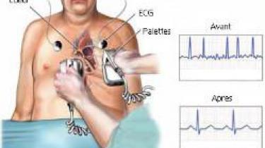 Cardioversion électrique