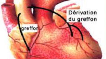 Pontage coronaire