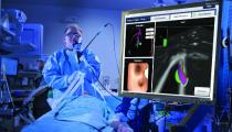Nouvelles technologie de pointe pour le diagnostic et traitement du cancer du poumon à l'Hôpital Erasme