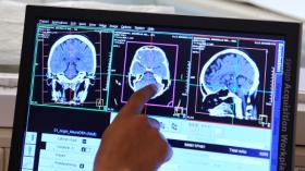 Présentation du Service de Neurologie de l'Hôpital Erasme