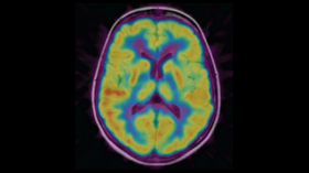 Image obtenue avec un PET scan